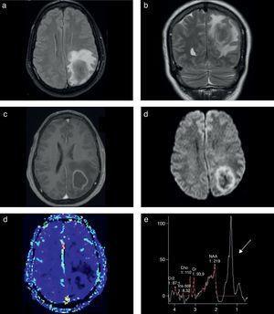 RM multimodal en un paciente VIH+ con tuberculoma cerebral diagnosticado por el estudio patológico de la pieza de resección quirúrgica. Se presenta (a) en la secuencia FLAIR una lesión focal parietal izquierda y superficial con edema asociado, (b) baja señal en la secuencia ponderada en T2 (típico de estas lesiones) y (c) realce anular en la secuencia ponderada en T1 con contraste. (d) En la difusión no hay restricción central. (d) La perfusión y (f) la espectroscopia tienen las características habituales de las lesiones infecciosas, con un pico elevado de lípidos/lactatos (flecha).