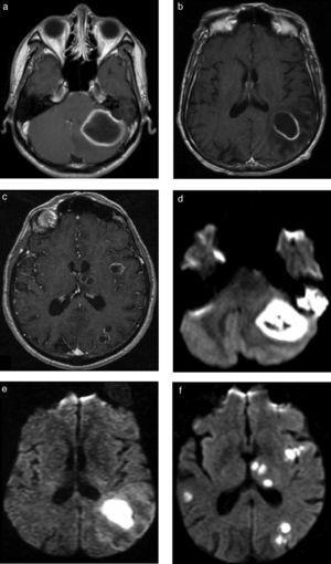 Abscesos cerebrales bacterianos inespecíficos. Pacientes con AC (a y d) bacteriano cerebeloso, (b y e) encefálico subcortical y (e y f) múltiples de distribución bilateral superficial y profunda. Se ilustra el comportamiento característico de estas lesiones con el realce anular clásico en (a, b y c) las secuencias ponderadas en T1 con contraste y (d, e y f) el intenso fenómeno de restricción en el centro necrótico en la difusión, típico de estas lesiones.