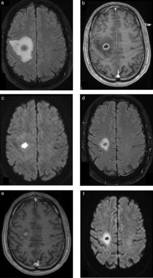 Absceso cerebral bacteriano tratado con antibióticos: seguimiento. Paciente tratado con triple plan de antibióticos (ATB) debido a la ausencia de focalidad neurológica y el tamaño del absceso. En el estudio diagnóstico se observa el aspecto típico de la lesión: (a) edema en FLAIR, (b) realce anular en la secuencia ponderada en T1 con contraste e (c) intensa restricción en la difusión. En la RM de control a los 15 días se observa (d) la disminución del tamaño de la lesión y del edema, (e) la persistencia de un sector de realce y (f) sobre todo la ausencia total de restricción, que confirma la excelente respuesta al tratamiento instaurado.