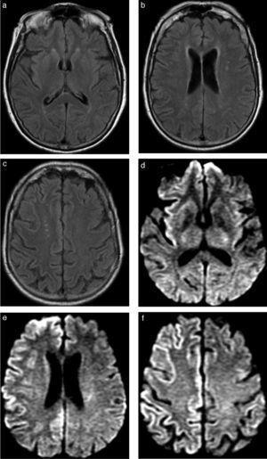 Encefalitis confirmada por estudio del líquido cefalorraquídeo. Se ilustra la utilidad particular de la difusión en el diagnóstico precoz de cuadros infecciosos virales. (a, b y c) Secuencia FLAIR que se interpreta como normal a los 3 días del inicio de los síntomas. (d, e y f) Secuencia de difusión del mismo estudio que muestra zonas extensas de restricción cortical a nivel del hemisferio derecho, con compromiso insular asociado, sin zonas de edema significativo ni efecto de masa.