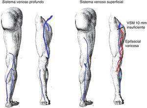 Anotaciones del informe: VSM dilatada (10mm) desde la USF con presencia de epifascial varicosa en el muslo y la pierna, y reentrada en perforante insuficiente en hora 3 a 20cm de la planta del pie.