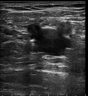 Signo de Mickey Mouse: imagen transversal donde se identifica la vena femoral común (VFC), la arteria femoral común y la vena safena magna (VSM).