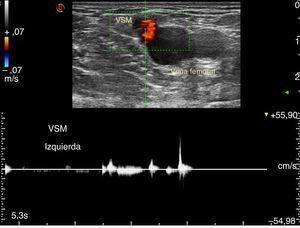 Doppler espectral con corte transversal evidencia una VSM suficiente ante las maniobras de Valsalva.