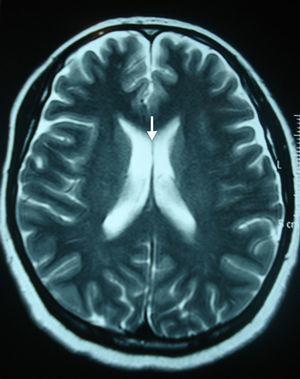 Resonancia magnética de cerebro, corte axial en ponderación T2: se señala el septum pellucidum (lucidum) normal (flecha).