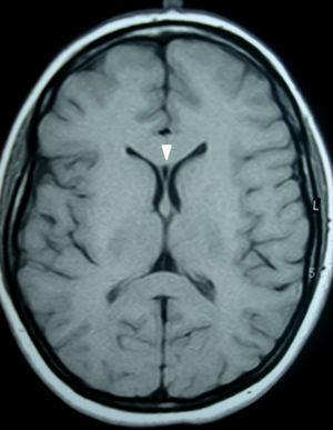 Resonancia magnética de cerebro, corte axial en ponderación T1: se aprecia la presencia de una cavidad triangular entre las prolongaciones frontales de los ventrículos laterales, conocida como cavum del septum pellucidum (cabeza de flecha).