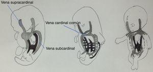 Se muestra la vena cardinal izquierda involucionando y la vena cardinal derecha formando la vena cava superior.