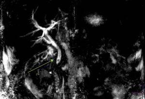 Resonancia magnética con secuencia colangiográfica en la que se observa una coledocolitiasis (flecha) que produce dilatación de la vía biliar.