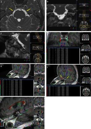 Paciente de sexo femenino de 42 años de edad con una neuralgia esencial del trigémino izquierda, de 1 año de evolución. Se encuentra afectada la rama V2 y en la porción cisternal a izquierda (pars triangularis) se observa un vacío de flujo que contacta con la misma, probablemente correspondiendo a un loop de la arteria cerebelosa antero-inferior (a, b y c). En la tractografía se visualiza la continuidad de las fibras, pero llamativamente en algunas de ellas la FA del lado afectado se encuentra disminuida con respecto a su contralateral asintomático (valores disminuidos: fibras celestes en d y e). También se evidencia un compromiso neurovascular similar al del lado contralateral, con una FA en rango normal, interpretado como variante anatómica (flechas en a). Véase en las imágenes f y g las fibras rojas correspondientes al nervio sano y las fibras celestes correspondientes al lado afectado.