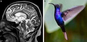 (a) Resonancia magnética de encéfalo, plano sagital, en ponderación T2 de un paciente con PSP y atrofia mesencefálica (flecha): se observa la pérdida de la convexidad habitual del mesencéfalo, con disminución del tegmento y una relativa conservación del tamaño de la protuberancia (asemejándose, respectivamente, al pico y cuerpo de un colibrí). (b) La foto del colibrí evidencia la similitud con la figura formada en (a).