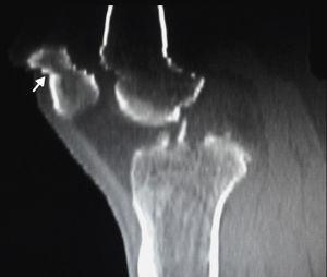 TC en reconstrucción multiplanar, corte sagital, en ventana ósea: se observa un artificio escalonado a nivel de la epífisis distal del fémur y polo superior de la rótula (flecha).
