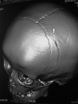 TC de cráneo, reconstrucción 3D, en ventana ósea: en el extremo superior de la calota se evidencia un artificio concéntrico y escalonado (flecha).