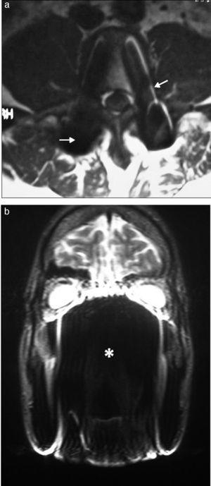 RM de columna lumbar, corte axial, en ponderación T1: (a) se observan elementos metálicos de osteosíntesis (tornillos) que distorsionan la imagen por artefacto de susceptibilidad magnética (flechas). (b) RM de macizo craneofacial, corte coronal, en ponderación T2: los brackets generan vacío de señal, alterando la normal visualización (asterisco).