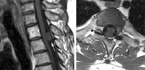 RM, plano sagital y axial poscontraste, sin refuerzo de la lesión (flechas).