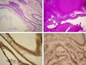En la histopatología (400 X) se observa una lesión quística tapizada por epitelio cuboidal con núcleos esféricos con leve pleomorfismo, (a) citoplasma acidófilo y (b) material amorfo PAS positivo. La inmunomarcación fue positiva para (c) citoqueratina 7 y (d) antígeno carcinoembrionario.