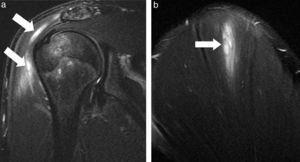Desgarro del músculo deltoides. Las secuencias ponderadas en STIR, planos (a) coronal y (b) sagital, visualizan un desgarro del vientre muscular a nivel proximal y medio con compromiso de la unión miotendinosa en su inserción humeral, donde convergen los 3 grupos de fibras (clavicular, acromial y escapular) (flechas). El paciente practicaba boxeo.