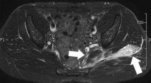 Desgarro del piriforme o piramidal de la pelvis (flecha interna) y glúteo medio (flecha externa) izquierdos. La secuencia ponderada en STIR, plano axial, registra una rotura fascicular de ambos grupos musculares, con marcados signos de edema de partes blandas. La RM, por su amplio campo visual, permite reconocer desgarros de grupos musculares adyacentes de localización profunda.
