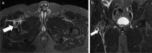 Desgarro del músculo psoas ilíaco. Secuencias ponderadas en STIR, planos (a) axial y (b) coronal, muestran una rotura parcial a nivel de la unión miotendinosa distal del psoas ilíaco en su inserción a nivel del trocánter menor derecho (flechas).