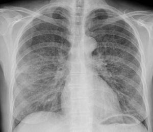 Radiografía simple de tórax donde se visualiza un discreto aumento de densidad, con patrón en vidrio esmerilado, bilateral y de predominio parahiliar.