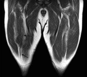 Desgarro completo del tendón distal del RF. La imagen ponderada en T1, en plano coronal, muestra el cabo tendinoso distal retraído (flecha sólida) asociado a una ondulación del vientre muscular (flecha discontinua).