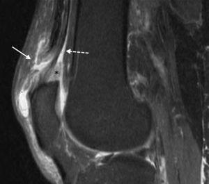 Imagen ponderada en T2 con supresión grasa, en plano sagital, de un paciente con desgarro completo del tendón distal del RF (flecha sólida) e injuria intrasustancia del cabo tendinoso. La flecha discontinua señala la inserción habitual de los tendones del VI y VE (plano intermedio) y crural (plano profundo). Además, se observa edema de la almohadilla grasa subcuadricipital (asterisco).