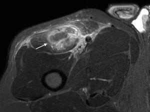 Imagen ponderada en T2 con supresión grasa, en plano axial, señala la ausencia del TIRF con discontinuidad completa de la unión miotendinosa y un área heterogénea con un hematoma intramuscular (flecha).
