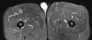 Imagen en ponderación T2 con supresión grasa, en plano axial, manifiesta un desgarro miofascial con edema fibrilar difuso en el área central del RF (flecha sólida) asociado a un hematoma localizado entre el vientre muscular y la fascia indemne (flecha discontinua).