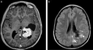 Paciente joven de sexo masculino consultó por cefalea gravativa subaguda. (a) La RM en corte axial evidencia una lesión ocupante del atrio ventricular izquierdo, que depende del plexo coroideo y muestra un marcado realce en las secuencias ponderadas en T1 tras la administración del contraste. (b) En la secuencia FLAIR con cortes axiales se observa un compromiso de la sustancia blanca periventricular (flechas) que indica infiltración. La lesión corresponde a un carcinoma del plexo coroideo.
