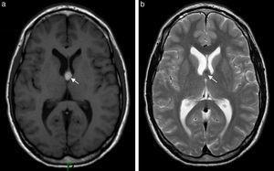 La RM en ponderación (a) T1 y (b) T2, en corte axial, muestra una lesión quística del tercer ventrículo (flechas), compatible con un quiste coloideo en un paciente con historia de cefalea crónica.