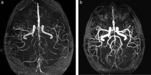 Síndrome de vasoespasmo cerebral reversible en paciente con cefalea poscoital. (a) La angio-RM tridimensional TOF, en plano axial, demuestra al momento de la consulta una marcada irregularidad en la señal de los vasos intracraneanos. (b) Esta desaparece después del tratamiento con bloqueantes cálcicos.