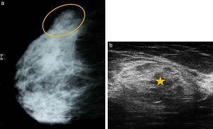 """Hamartoma. (a) En la mamografía se observa en el cuadrante externo una opacidad ovalada de contornos netos, con densidad grasa y glandular (círculo), rodeada por un halo radiolúcido que corresponde a una pseudocápsula y que tiene la apariencia de una """"mama dentro de mama"""". (b) En la ecografía la misma imagen se muestra ovoide, heterogénea y predominantemente ecogénica, con áreas isoecoicas en su interior, rodeada de una pseudocápsula ecogénica (asterisco) formada por la compresión del tejido circundante."""