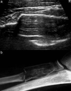 (a) Ecografía de partes blandas de la región proximal del antebrazo, realizada por un dolor postraumatismo deportivo, muestra un afinamiento y expansión de la cortical ósea, con aparente ensanchamiento posterior del hueso. (b) En la radiografía se reconoce un quiste óseo con fragmento de fractura.