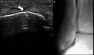 (a) Ecografía de la región maleolar externa derecha, realizada por persistencia de dolor luego de una entorsis, muestra una mínima solución de continuidad cortical (flecha). (b) El examen radiográfico ampliado constata una fisura del peroné.