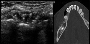 (a) Ecografía de partes blandas de la región maxilar derecha, realizada por dolor y tumefacción, muestra una reacción perióstica en rayos de sol. (b) Correlación tomográfica en plano axial. Diagnóstico: mieloma múltiple.