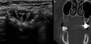 (a) Ecografía de la misma paciente de la figura 2 con (b) su correlación tomográfica en plano coronal.