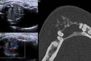 (a) Ecografía de partes blandas del mentón, realizada por tumoración, identifica una lesión de partes blandas con destrucción de la cortical y (b) aumento de la vascularización en el Doppler color. (c) Correlación tomográfica. Diagnóstico: metástasis de riñón.