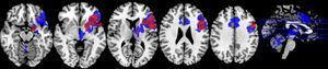 Paradigma de fluencia fonológica. Las zonas de activación se observan en rojo en la restricción moderada de sueño y en azul en el ciclo de sueño regular.