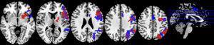 Paradigma Stroop normal. Las zonas de activación se muestran en rojo en la restricción moderada de sueño y en azul en el ciclo de sueño regular.