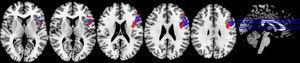 Paradigma Stroop lista. Las zonas de activación se identifican con rojo en la restricción moderada de sueño y con azul en el ciclo de sueño regular.