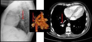 Radiografía en proyección lateral de tórax detecta una lesión nodular de alta densidad en el lóbulo inferior derecho (flechas). La naturaleza vascular de la lesión se confirma en la reconstrucción volumétrica y corte axial de la TCMD con contraste intravenoso en fase arterial.