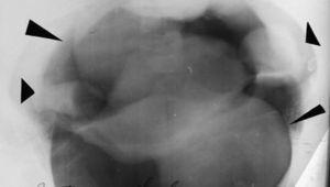Neumopelvigrafía revela ovarios (flechas cortas) y miomas uterinos (flechas largas).