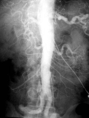 Aortografía con aguja blanda (circa 1977).