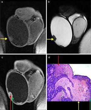 Correlación entre los hallazgos de la RM con la anatomía patológica. RM (a) en corte coronal con secuencia en ponderación T1, (b) en corte coronal con secuencia ponderada en T2 y (c) en corte coronal con secuencia ponderada en T1 con gadolinio. (d) Anatomía patológica (H&E 40x). Las flechas amarillas indican la correlación entre la hipointensidad característica en ponderación T1 y T2 con las áreas desmoplásicas en la anatomía patológica. Las flechas rojas señalan la correlación entre la hipointensidad central en la secuencia ponderada en T1 con gadolinio y las áreas de necrosis sucia central en la anatomía patológica. Las flechas verdes muestran la correlación entre la hiperintensidad periférica en la secuencia ponderada en T1 con gadolinio y las áreas de proliferación celular atípica en la anatomía patológica.