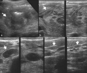 Ecografía abdominal de una paciente con repercusión general y dolor del abdomen evidencia (a) una formación a nivel del ciego (flecha), (b) con engrosamiento de las paredes intestinales delgadas (flecha) y (c) múltiples imágenes ganglionares regionales (flechas) y en la submucosa del intestino delgado, solo reconocibles ante la exploración con un transductor de alta frecuencia. Los hallazgos son compatibles con linfoma o tuberculosis (se confirmó esta última).