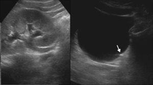 Ecografía por dolor abdominal y hematuria identifica hidronefrosis condicionada por una pequeña litiasis en la unión ureterovesical (flecha).