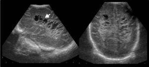 Ecografía transfontanelar revela signos de leucomalacia periventricular con cavidades quísticas periventriculares (flecha).