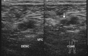 Ecografía por edema del miembro inferior izquierdo muestra la región femoral común, con falta de compresión de la vena y material ecogénico en su interior (flecha), indicativo de trombosis venosa.