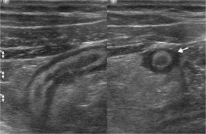 Ecografía abdominal por dolor en la fosa ilíaca derecha muestra las características típicas de un proceso apendicular agudo (flecha). En estos casos el estudio debe completarse con la utilización del transductor lineal para una mejor evaluación de la zona de dolor.