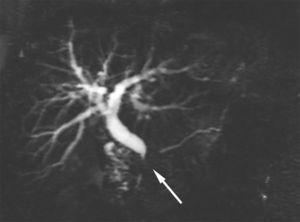 En la secuencia HASTE (∞/1100ms) se observa una sola estenosis corta (flecha) del conducto pancreático principal, localizada en la cabeza del páncreas, sin dilatación retrógrada.