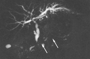 En la secuencia HASTE (∞/1100ms) en plano coronal se observan al menos dos estenosis largas (flechas) del conducto pancreático principal, localizadas en la cabeza y el cuerpo-cola del páncreas, sin dilatación del CPP hacia arriba.
