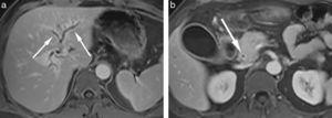 (a) En las secuencias eco de gradiente en apnea con interpolación volumétrica (VIBE) con saturación grasa y contraste con quelatos de gadolinio, en plano axial, durante la fase portovenosa, se observa engrosamiento de la pared de la vía biliar intrahepática (flechas). (b) En el mismo paciente, la pared del colédoco aparece engrosada con retención de contraste (flecha).